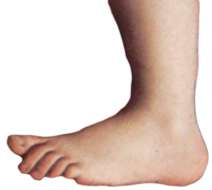"""Foot used in """"The Flying Circus."""" Wikimedia Commons."""